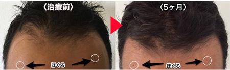 薄毛治療5ヶ月