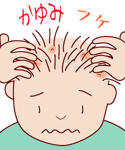 頭皮トラブル