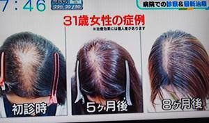 薄毛の改善症例
