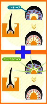 リモウ構造