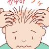 冬の頭皮湿疹に注意!頭皮に潤いを与える育毛剤・スカルプシャンプーは?