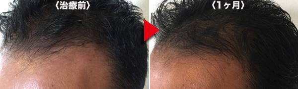 頭髪左M字比較