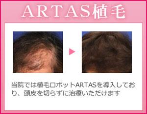 artas植毛